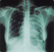 Гомельским врачам теперь безопаснее работать с больными туберкулёзом
